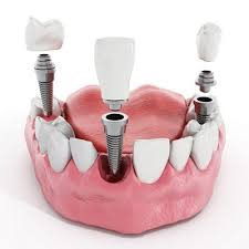 Dental implants cost - Full mouth dental reconstuction