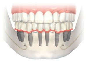 Click tite implant - overdenture