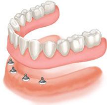 Click in denture: overdenture